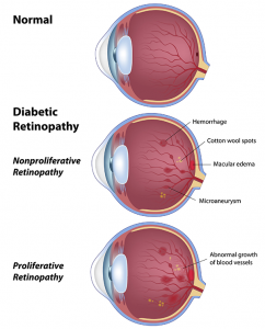 diabeticretinopathy