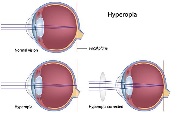 Mi a mérsékelt hyperopia, Hypermetrópia - Távollátás