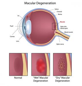 maculardegeneration