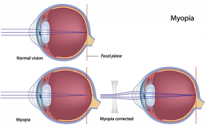 myopia-nearsightedness